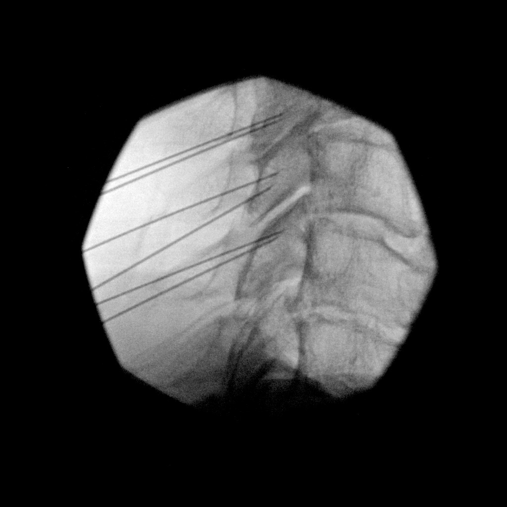 Cervical Facet RFA – 2
