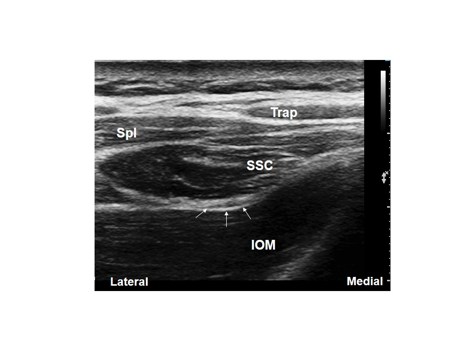 Occipital Nerve Block (Ultrasound)